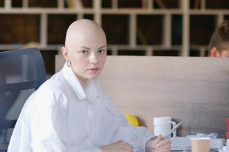 Alopecie a vše, co je o ní dobré vědět