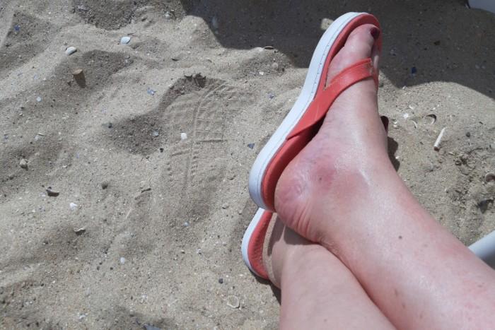 Celý den na nohou (4. díl) - Suché paty