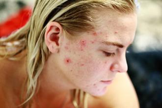 Co jíst a čemu se vyhnout při problémech s akné?