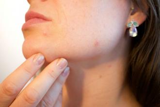 Přípravky, které vás zbaví akné