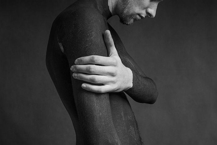 Vitiligo: Vraťte své pokožce přirozenou barvu!